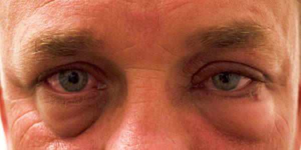 Восполнение глаз при аллергии